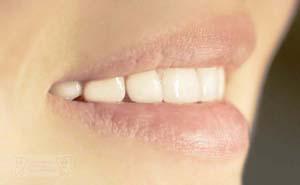 Schöne Zähne