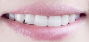 Weiße Zähne schönes Lächeln