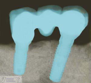 Neue Zähne auf Implantaten