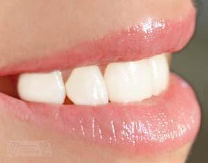 Ästhetische natürliche Zähne